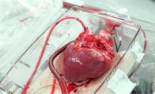 Az első szívátültetést 50 éve végezték el
