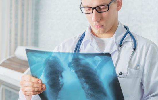 Felgyorsítanák a tuberkulózis felszámolását