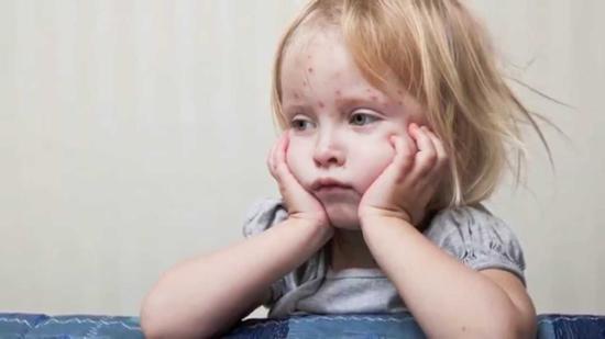 INSP: Újabb 215 kanyarós megbetegedés a héten