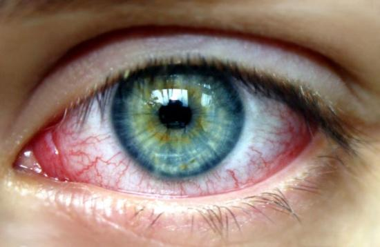 Egészségkalauz VIII.: Kötőhártya gyulladás