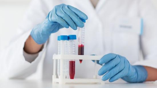 Ingyenes C-hepatitisz vizsgálat Kolozsváron