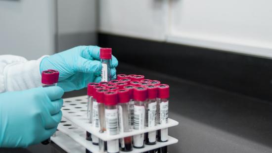 Koronavírus – Hétfőn 2844 esetet regisztráltak, Kolozs megyében 199 új fertőzött