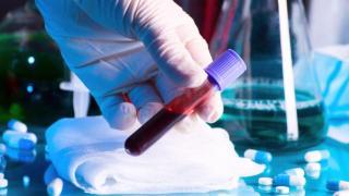 A fertőzöttek száma a világon 115,6 millió